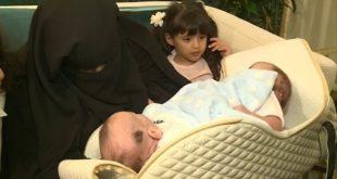 Libyalı siyam ikizleri tedavi için Riyad'a getirildi