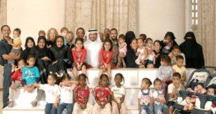 Suudi cerrah ikiz ayırma operasyonlarıyla rekor kırdı