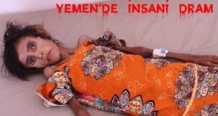 12 yaşındaki Fatıma, Yemen'de bir ağacın altında açlıktan ölüyor